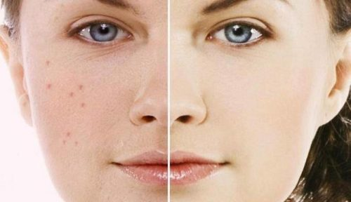 5 способів очистити шкіру за допомогою харчової соди