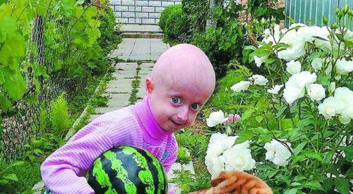 Одна така зі ста у світі: На Вінничині семирічна дівчинка живе у тілі старої бабусі